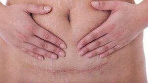 Cirugía de Hernias de Pared